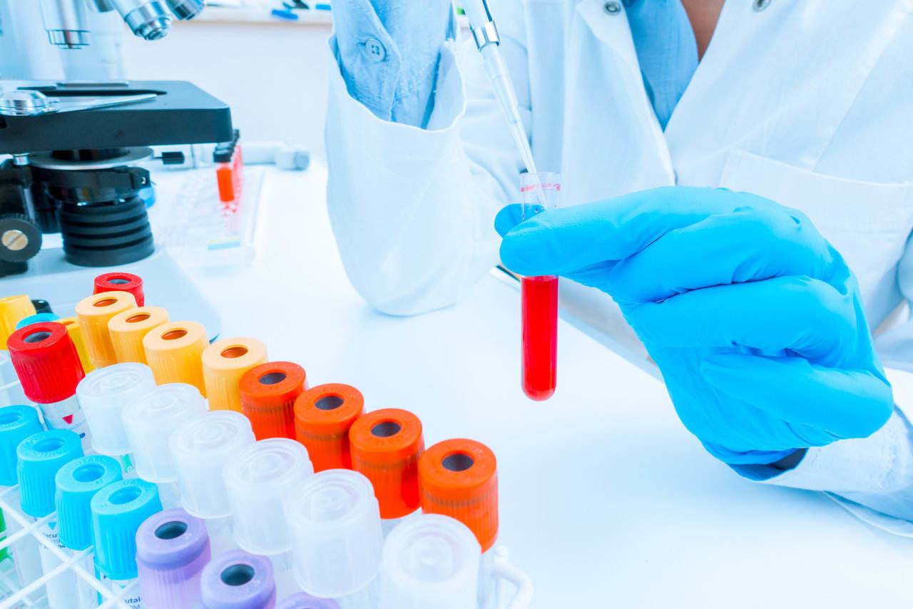 genetic testing carrier map screening