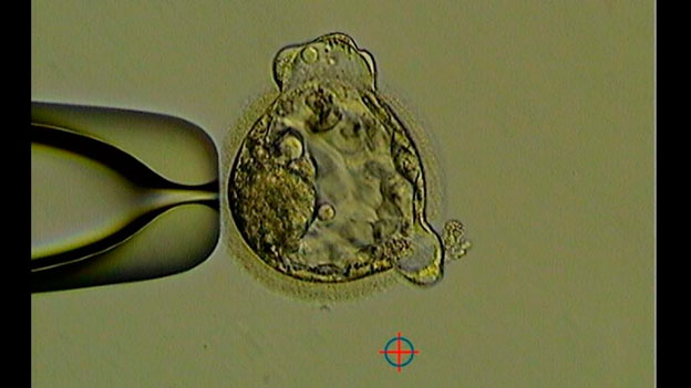 IVF embryo development - Koala - photo
